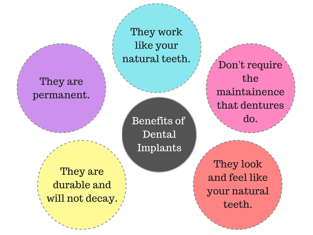 What are the benefits of dental implants by our Beaverton dentist.