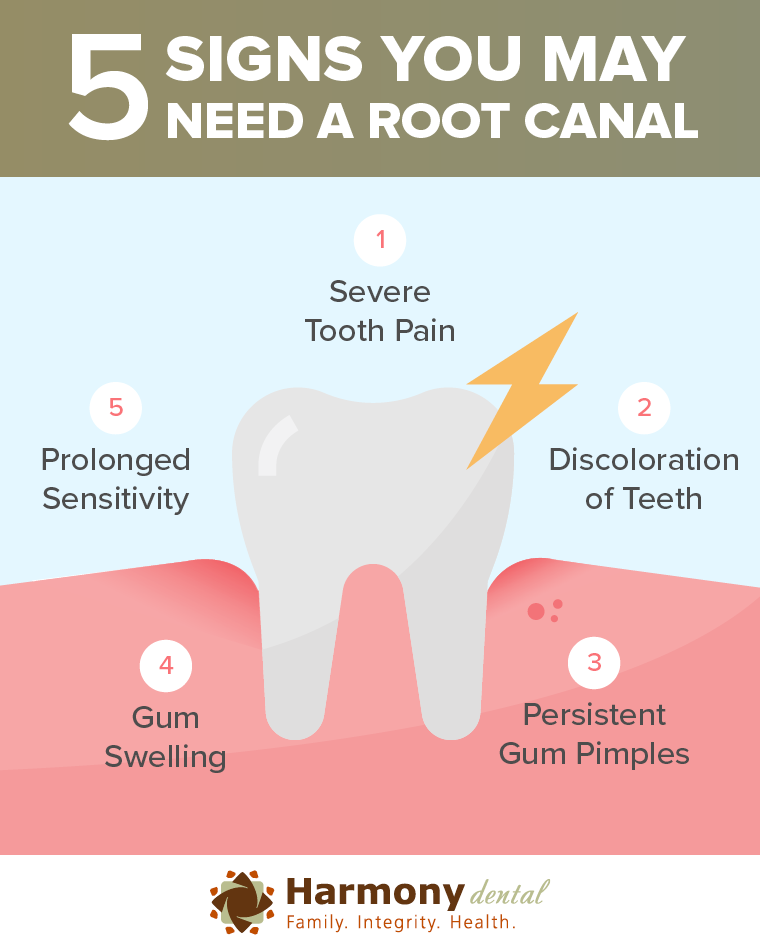 5 signs you need a root canal: Severe tooth pain, discoloration of teeth, prolonged sensitivity, gum swelling, persistent gum pimples