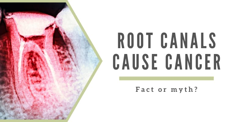 "X-ray showing a tooth's infected tooth roots with text ""root canals cause cancer - fact or myth?"""