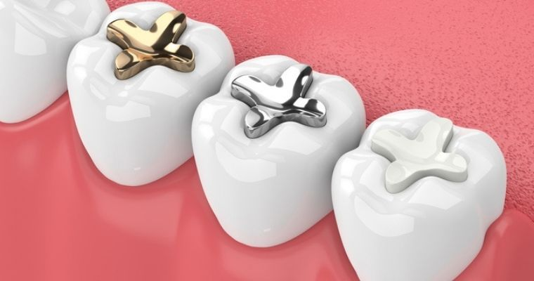 comparison of different types of fillings